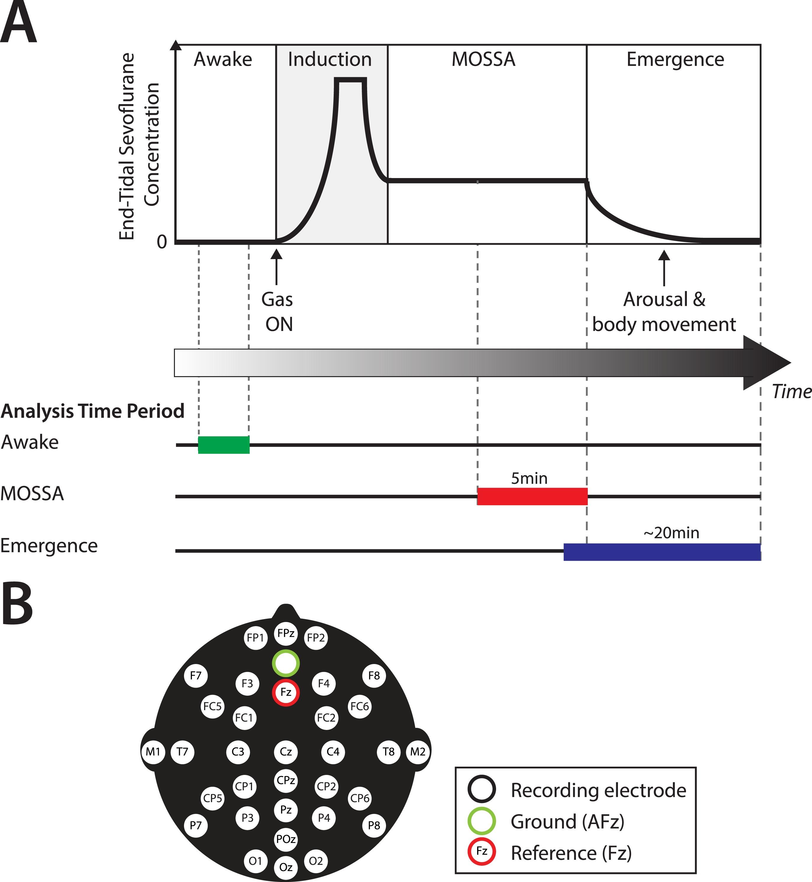 Age Dependent Electroencephalogram Eeg Patterns During Sevoflurane Block Diagram Of General Anesthesia In Infants Elife Lens
