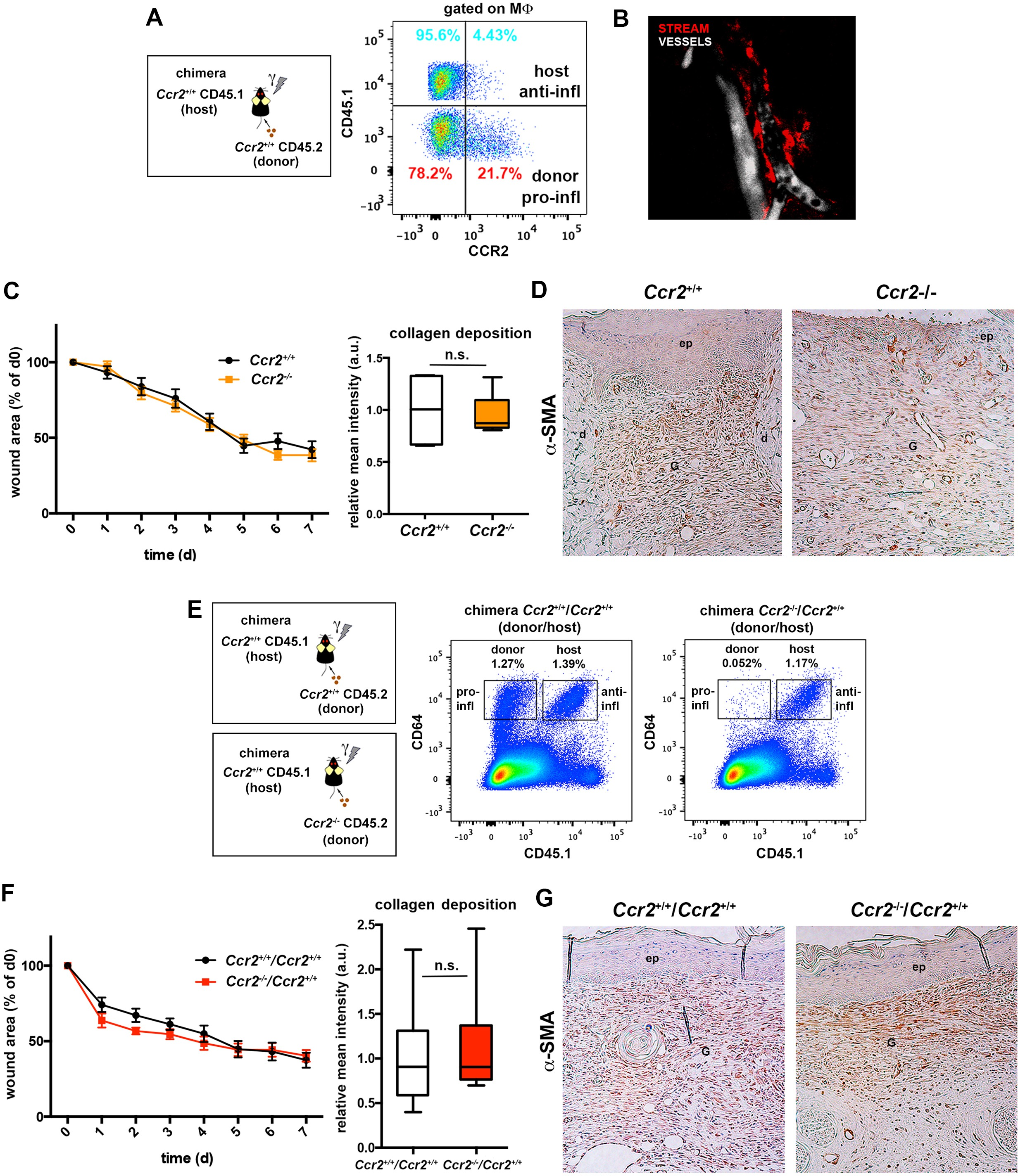 Pivotal role for skin transendothelial radio resistant anti pivotal role for skin transendothelial radio resistant anti inflammatory macrophages in tissue repair elife lens mitanshu Gallery