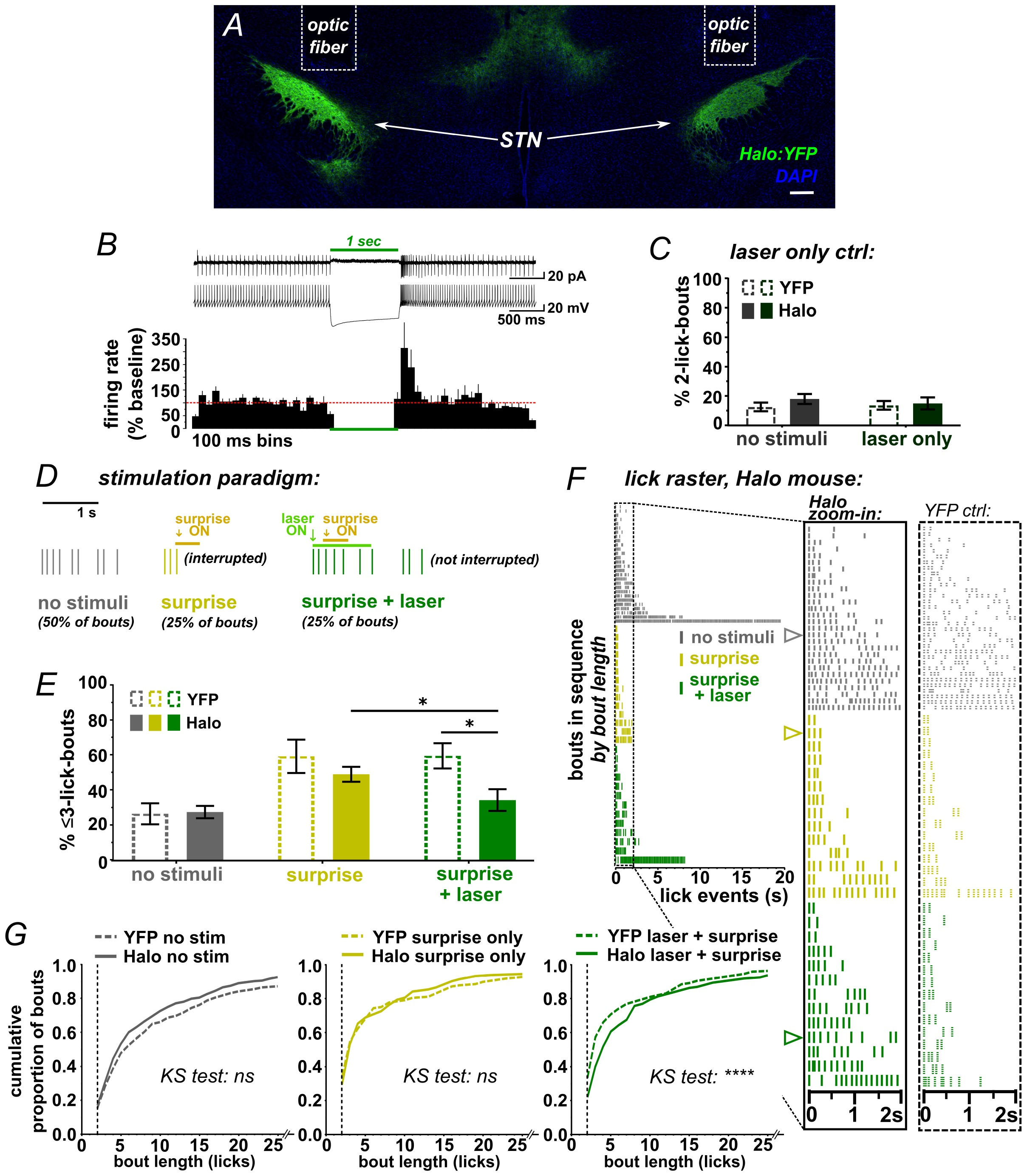 Causal role for the subthalamic nucleus in interrupting behavior