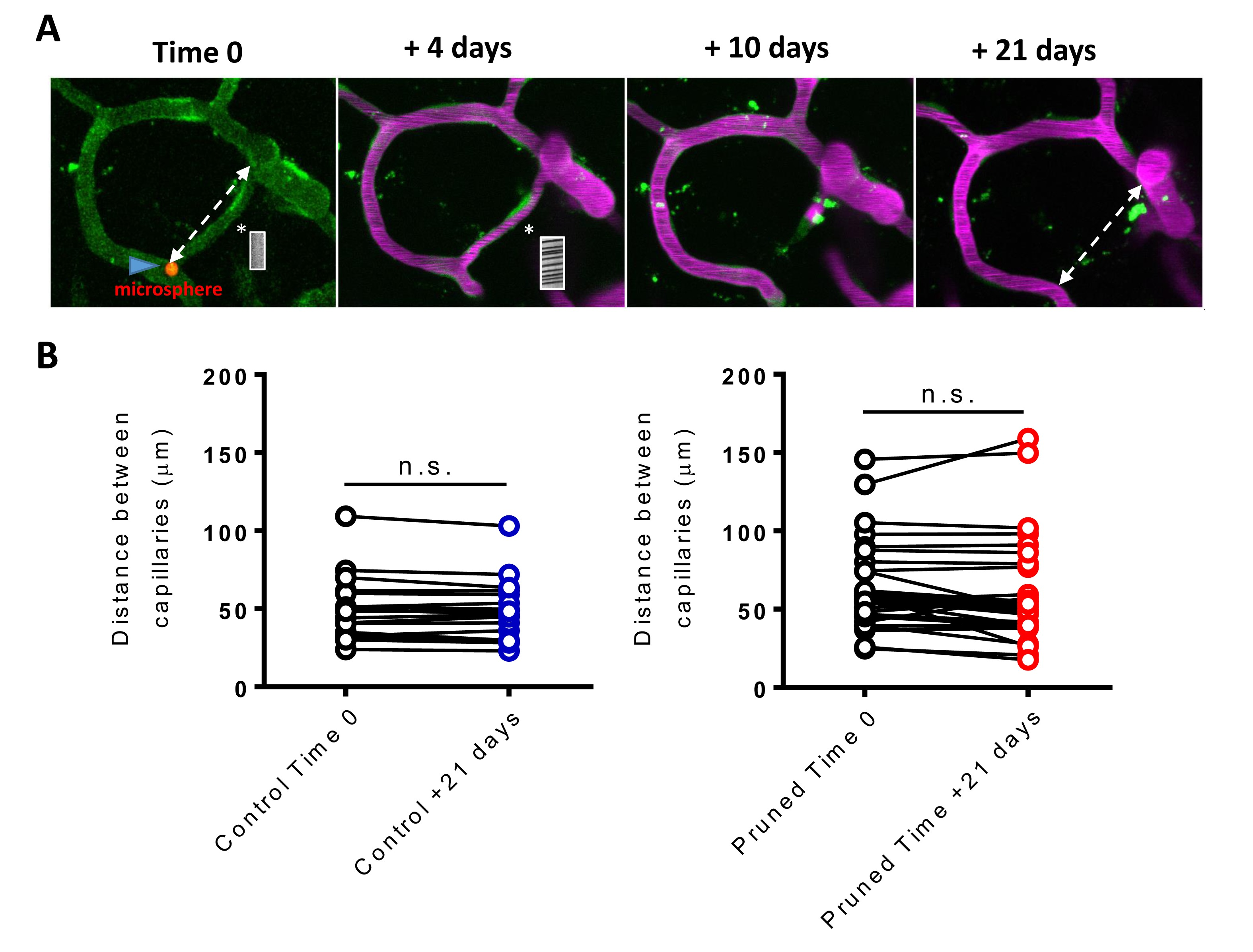 VEGF signaling regulates the fate of obstructed capillaries in mouse