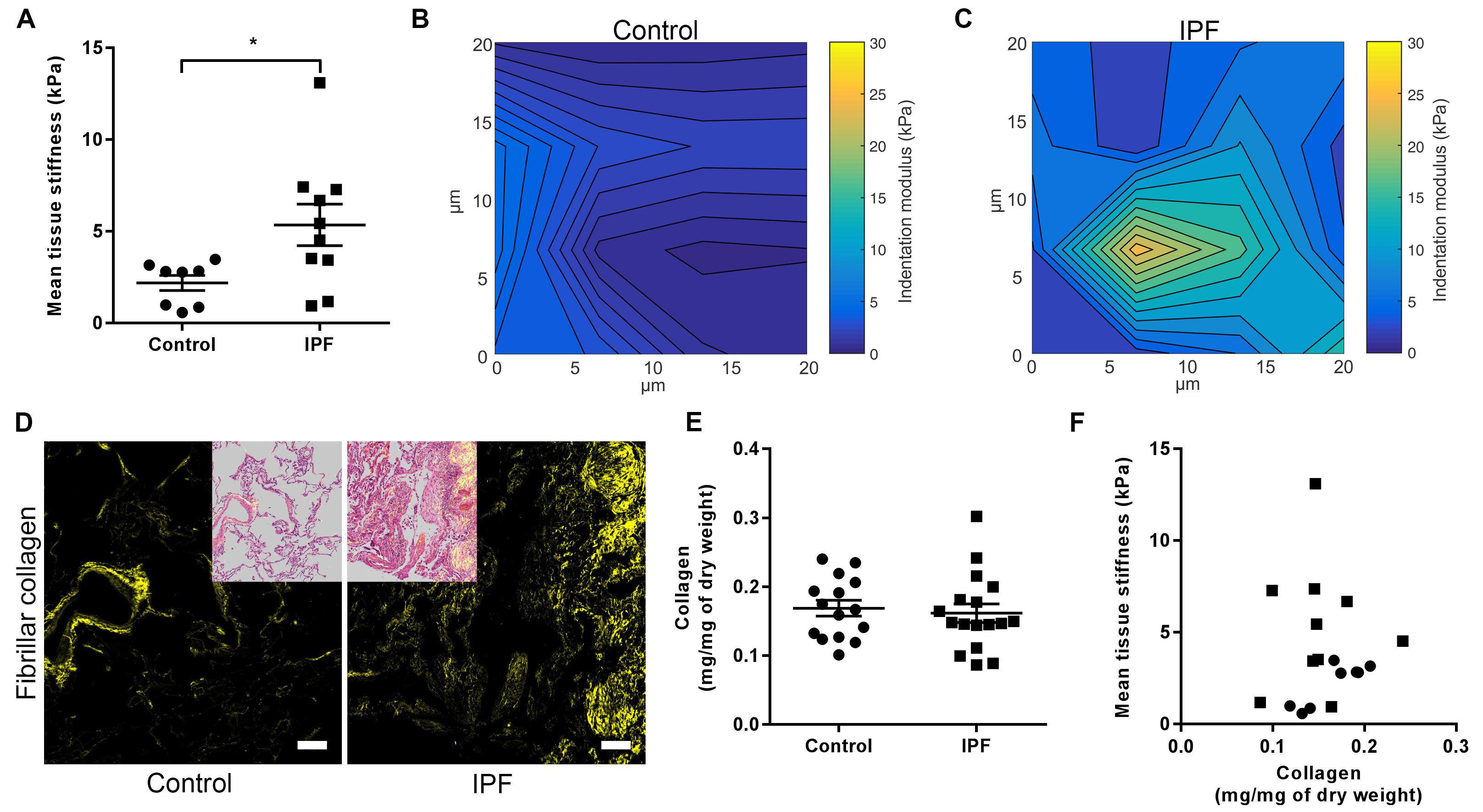 Nanoscale dysregulation of collagen structure-function
